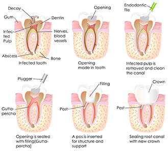root-canal-procedure.jpg