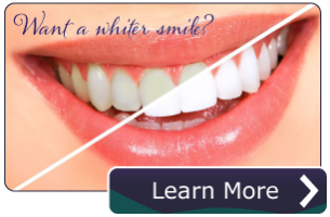jacobson-teeth-whitening-CTA.png